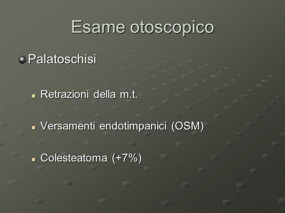 Esame otoscopico Palatoschisi Retrazioni della m.t. Retrazioni della m.t. Versamenti endotimpanici (OSM) Versamenti endotimpanici (OSM) Colesteatoma (