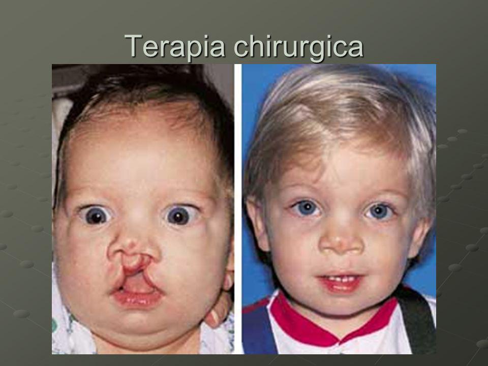 Trattamento logopedico Va iniziato il più presto possibile dopo il trattamento chirurgico (18 – 24 mesi).