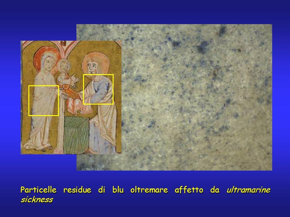 Particelle residue di blu oltremare affetto da ultramarine sickness