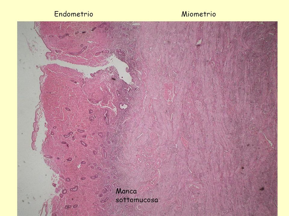 Endometrio Miometrio Manca sottomucosa