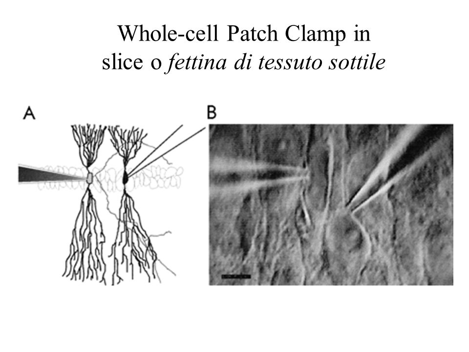 Whole-cell Patch Clamp in slice o fettina di tessuto sottile