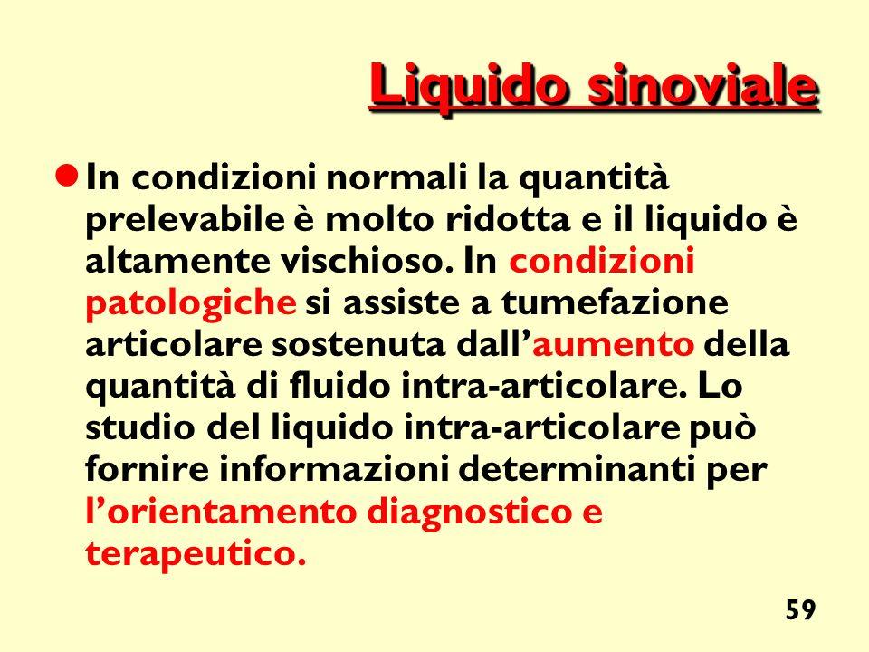 59 Liquido sinoviale In condizioni normali la quantità prelevabile è molto ridotta e il liquido è altamente vischioso. In condizioni patologiche si as