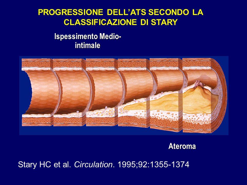 Ispessimento Medio- intimale PROGRESSIONE DELLATS SECONDO LA CLASSIFICAZIONE DI STARY Ateroma Stary HC et al. Circulation. 1995;92:1355-1374