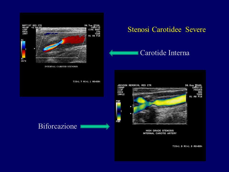 Stenosi Carotidee Severe Carotide Interna Biforcazione