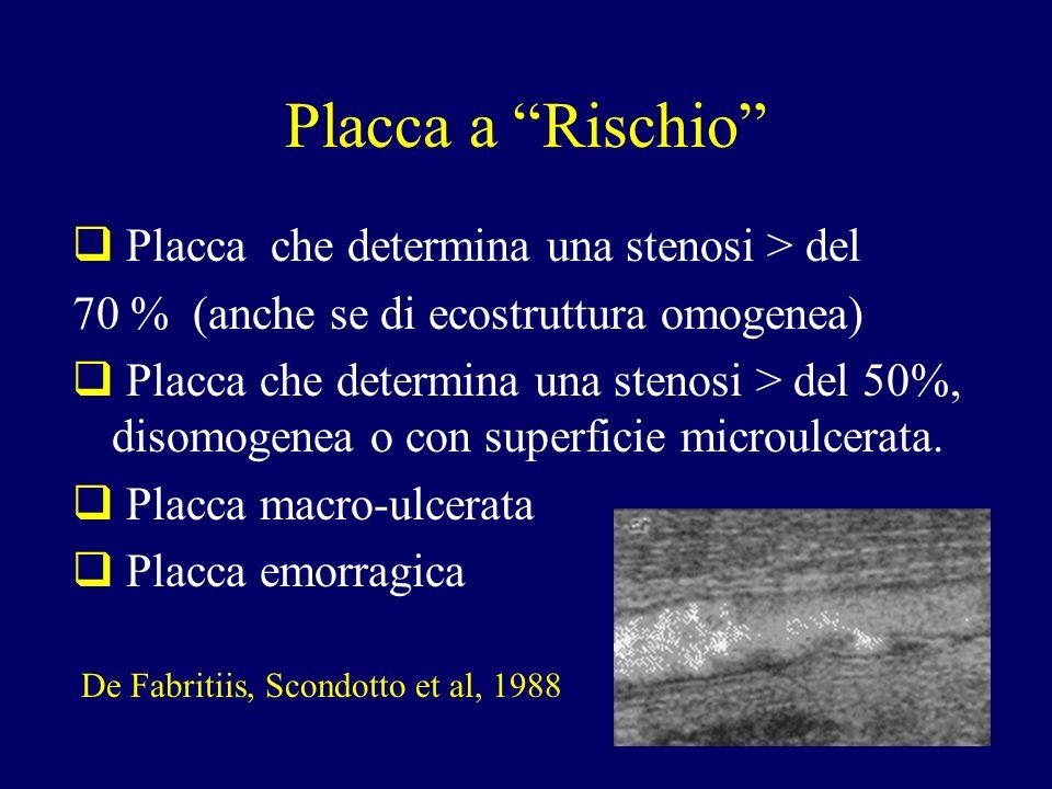 Placca a Rischio Placca che determina una stenosi > del 70 % (anche se di ecostruttura omogenea) Placca che determina una stenosi > del 50%, disomogen