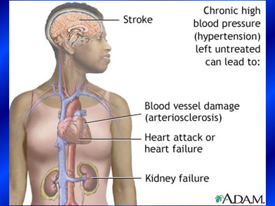 I farmaci per la gestione dellipertensione arteriosa, secondo le LG NICE & BHS, appartengono sostanzialmente a 3 classi farmacologiche: gli ACE-inibitori, i diuretici e i calcio-antagonisti