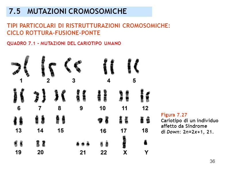 36 7.5 MUTAZIONI CROMOSOMICHE Figura 7.27 Cariotipo di un individuo affetto da Sindrome di Down: 2n=2x+1, 21. TIPI PARTICOLARI DI RISTRUTTURAZIONI CRO