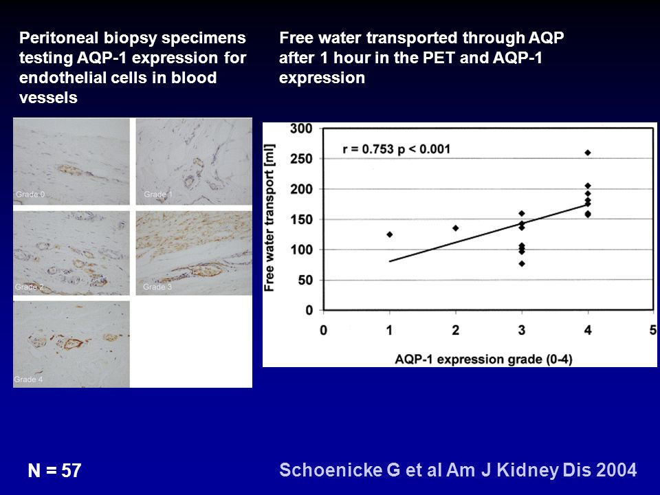 Peritoneal biopsy specimens testing AQP-1 expression for endothelial cells in blood vessels Free water transported through AQP after 1 hour in the PET