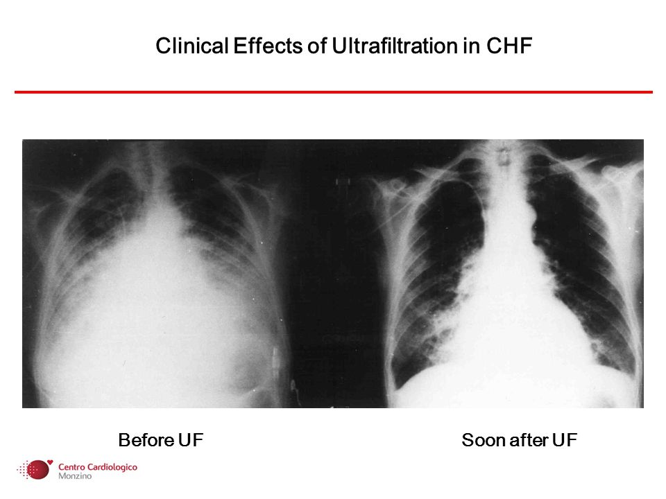 Clinical Effects of Ultrafiltration in CHF Before UF Soon after UF