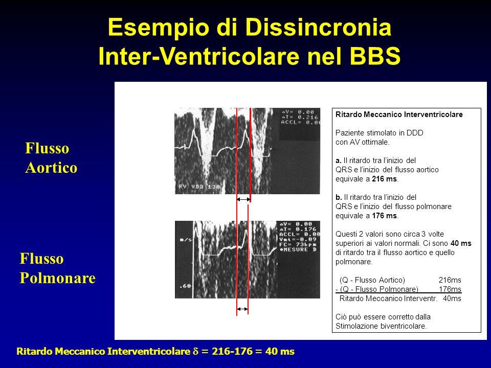 Flusso Aortico Flusso Polmonare Ritardo Meccanico Interventricolare Paziente stimolato in DDD con AV ottimale. a. Il ritardo tra linizio del QRS e lin