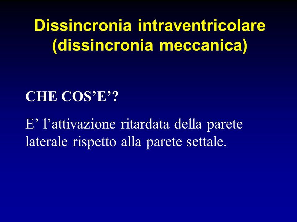 Dissincronia intraventricolare (dissincronia meccanica) CHE COSE? E lattivazione ritardata della parete laterale rispetto alla parete settale.