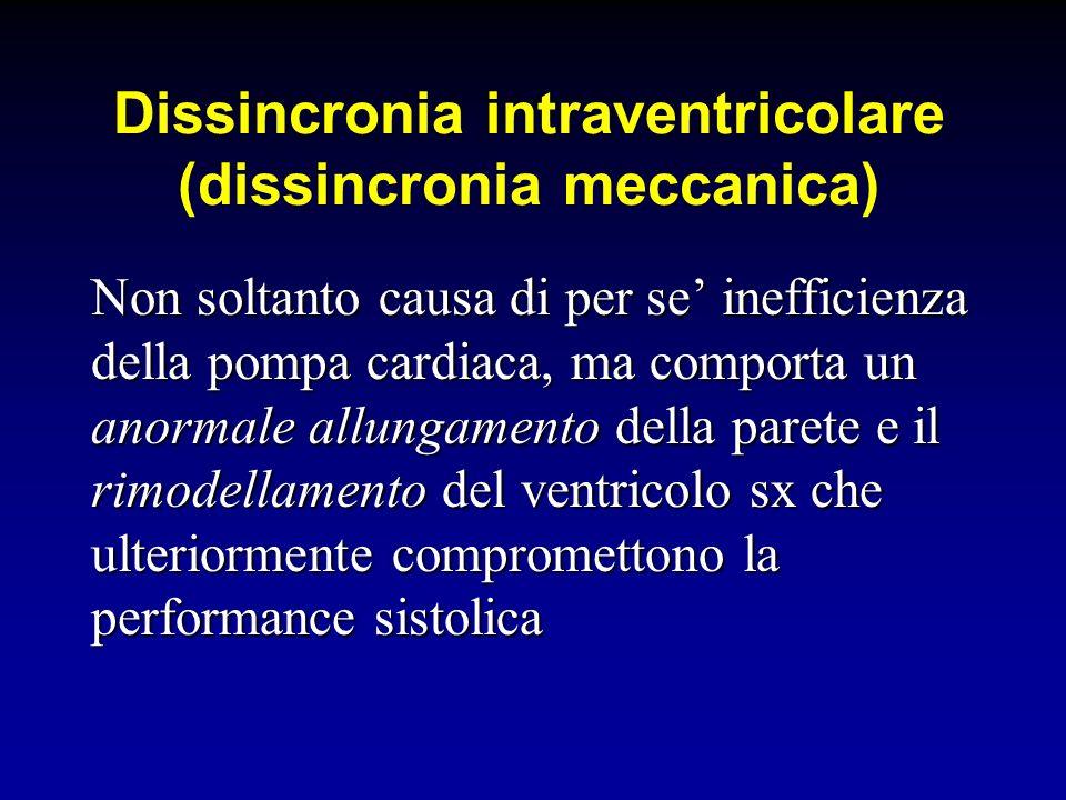 Dissincronia intraventricolare (dissincronia meccanica) Non soltanto causa di per se inefficienza della pompa cardiaca, ma comporta un anormale allung