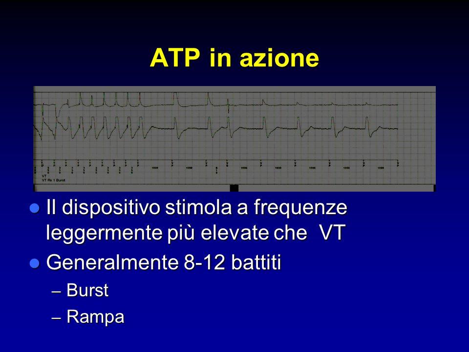ATP in azione Il dispositivo stimola a frequenze leggermente più elevate che VT Il dispositivo stimola a frequenze leggermente più elevate che VT Gene