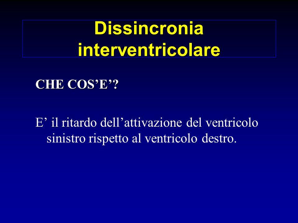 Dissincronia interventricolare CHE COSE? E il ritardo dellattivazione del ventricolo sinistro rispetto al ventricolo destro.
