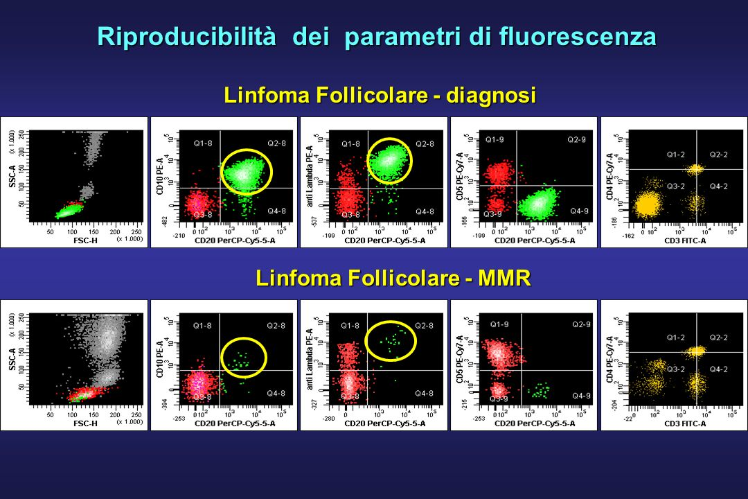 Riproducibilità dei parametri di fluorescenza Linfoma Follicolare - diagnosi Linfoma Follicolare - MMR