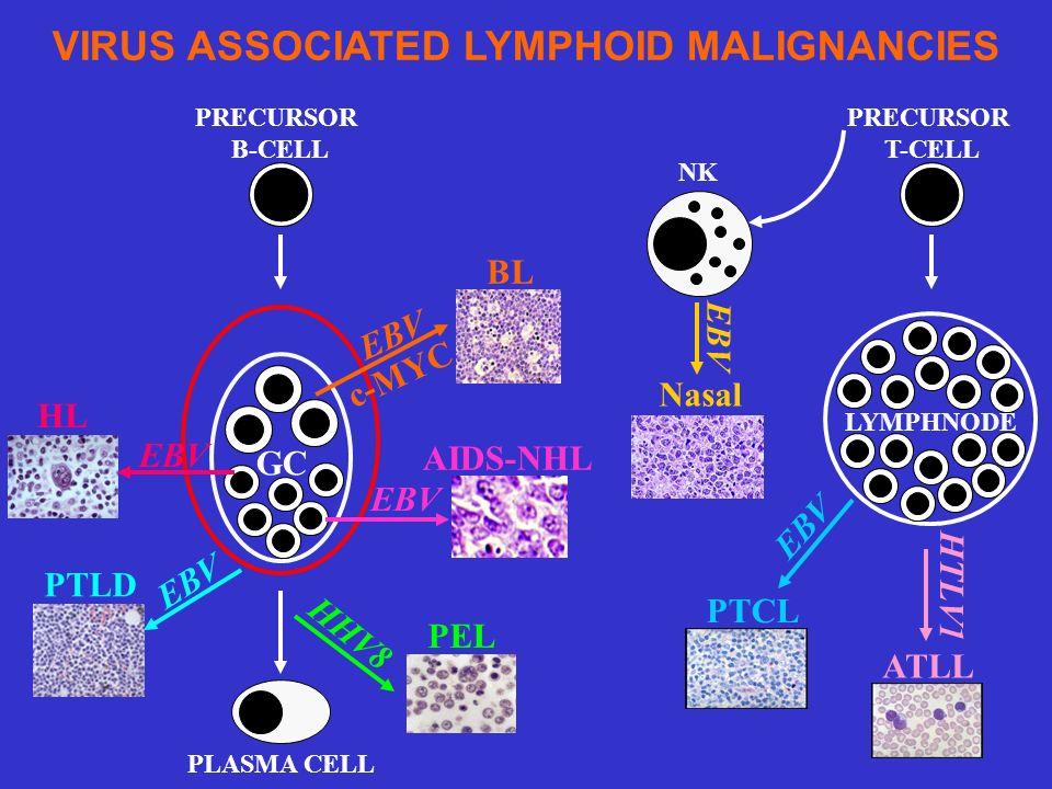 PRECURSOR B-CELL GC PLASMA CELL PTLD BL PEL AIDS-NHL EBV HHV8 HL EBV LYMPHNODE NK ATLL HTLV1 PTCL EBV Nasal EBV PRECURSOR T-CELL VIRUS ASSOCIATED LYMP