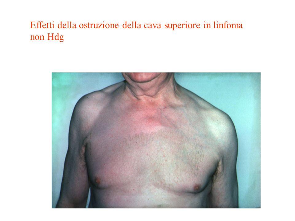 Effetti della ostruzione della cava superiore in linfoma non Hdg