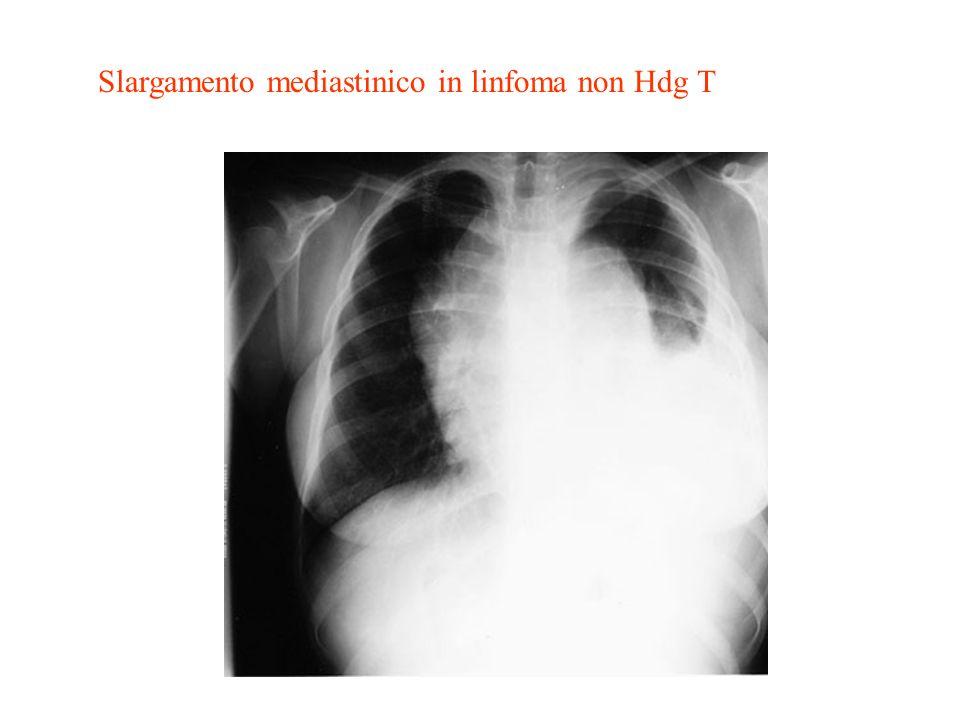 Slargamento mediastinico in linfoma non Hdg T