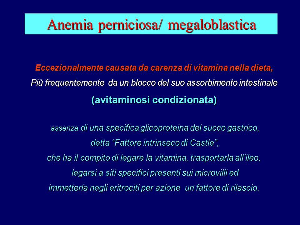 Anemia perniciosa/ megaloblastica Eccezionalmente causata da carenza di vitamina nella dieta, Più frequentemente da un blocco del suo assorbimento int