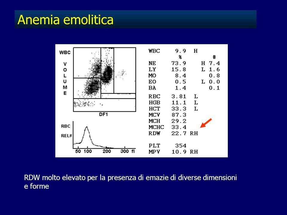 Anemia emolitica RDW molto elevato per la presenza di emazie di diverse dimensioni e forme