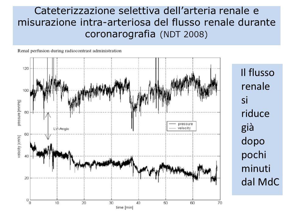 Cateterizzazione selettiva dellarteria renale e misurazione intra-arteriosa del flusso renale durante coronarografia (NDT 2008) Il flusso renale si ri