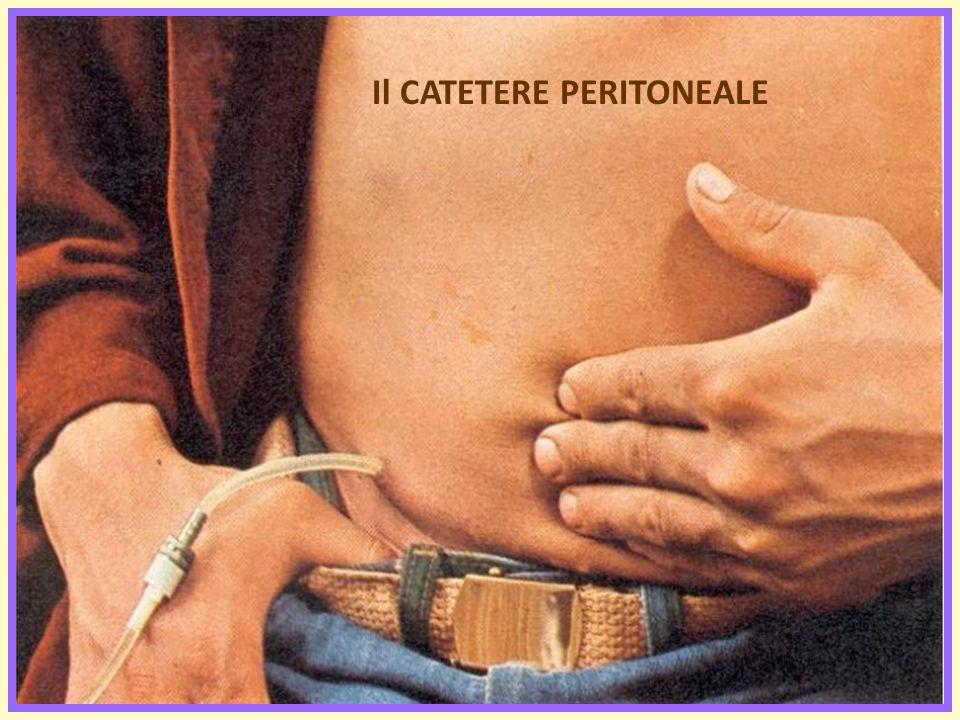 Il CATETERE PERITONEALE