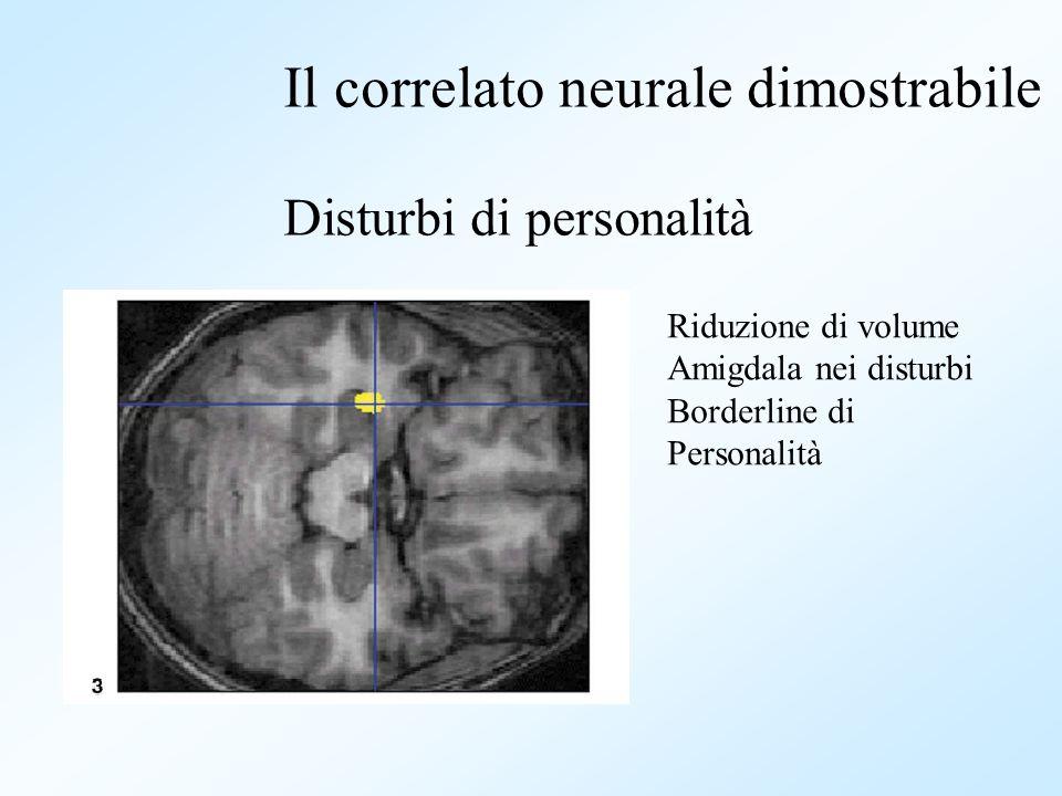 Riduzione di volume Amigdala nei disturbi Borderline di Personalità Il correlato neurale dimostrabile Disturbi di personalità