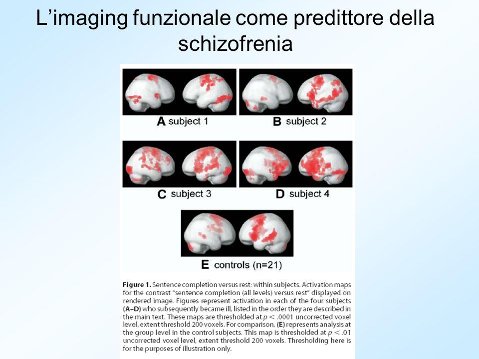 Limaging funzionale come predittore della schizofrenia