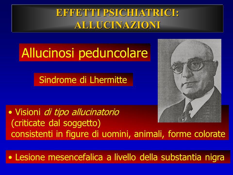 Allucinosi peduncolare Sindrome di Lhermitte Visioni di tipo allucinatorio (criticate dal soggetto) consistenti in figure di uomini, animali, forme co