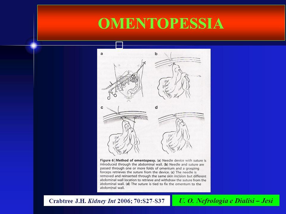 U. O. Nefrologia e Dialisi – Jesi OMENTOPESSIA Crabtree J.H. Kidney Int 2006; 70:S27-S37