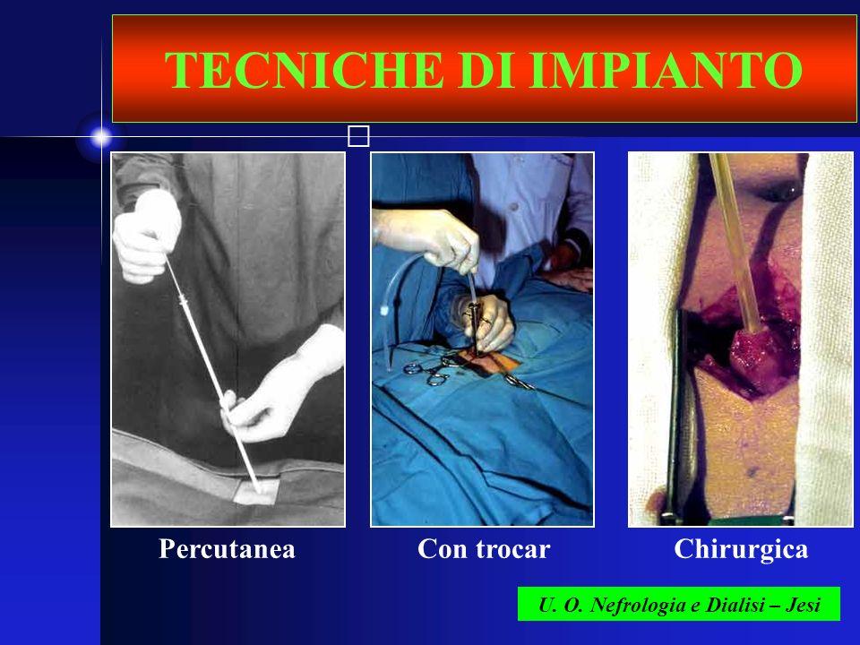 TECNICHE DI IMPIANTO U. O. Nefrologia e Dialisi – Jesi PercutaneaCon trocarChirurgica