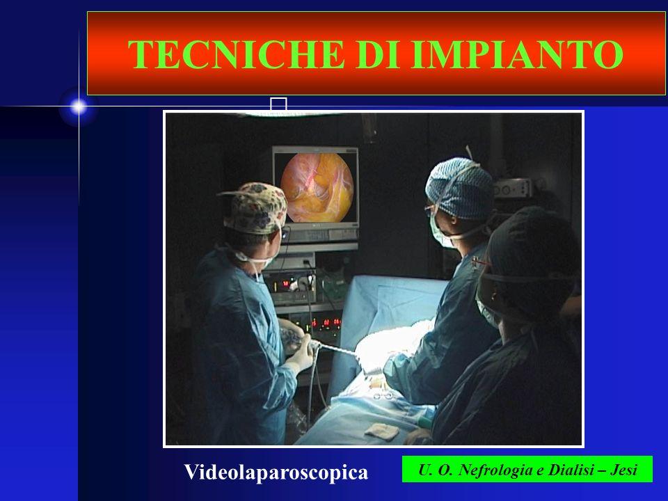 U. O. Nefrologia e Dialisi – Jesi TECNICHE DI IMPIANTO Videolaparoscopica