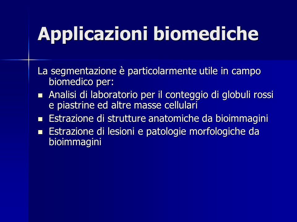 Applicazioni biomediche La segmentazione è particolarmente utile in campo biomedico per: Analisi di laboratorio per il conteggio di globuli rossi e pi