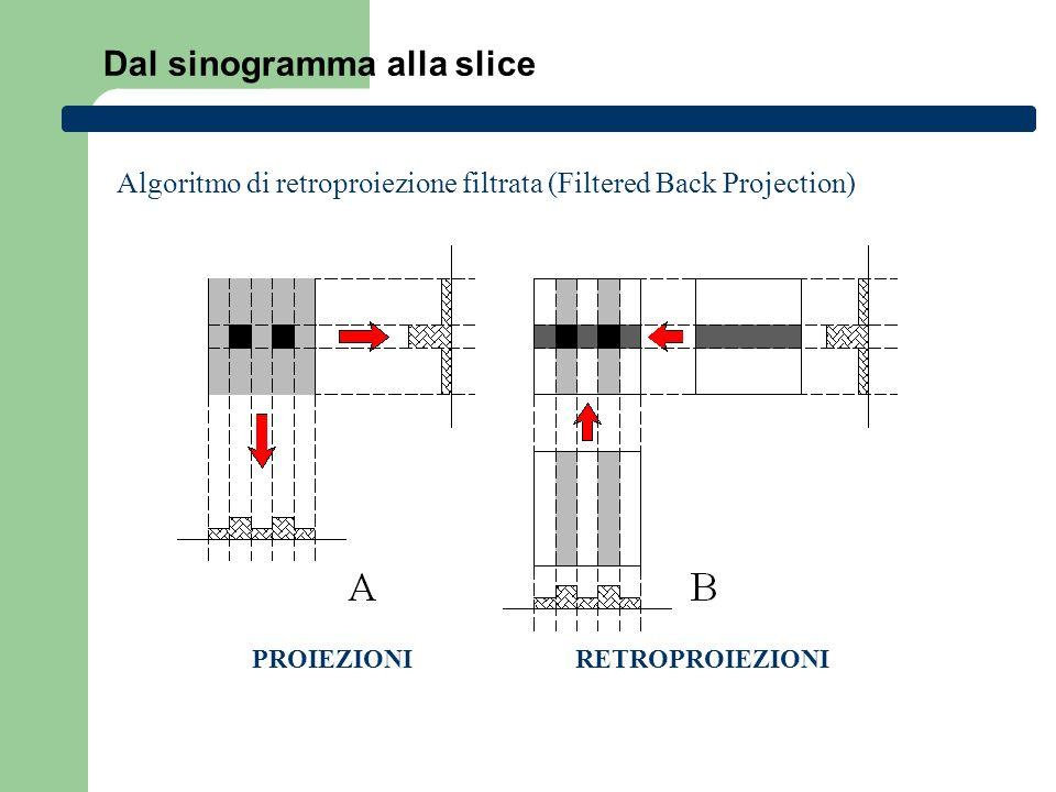 Dal sinogramma alla slice PROIEZIONIRETROPROIEZIONI Algoritmo di retroproiezione filtrata (Filtered Back Projection)