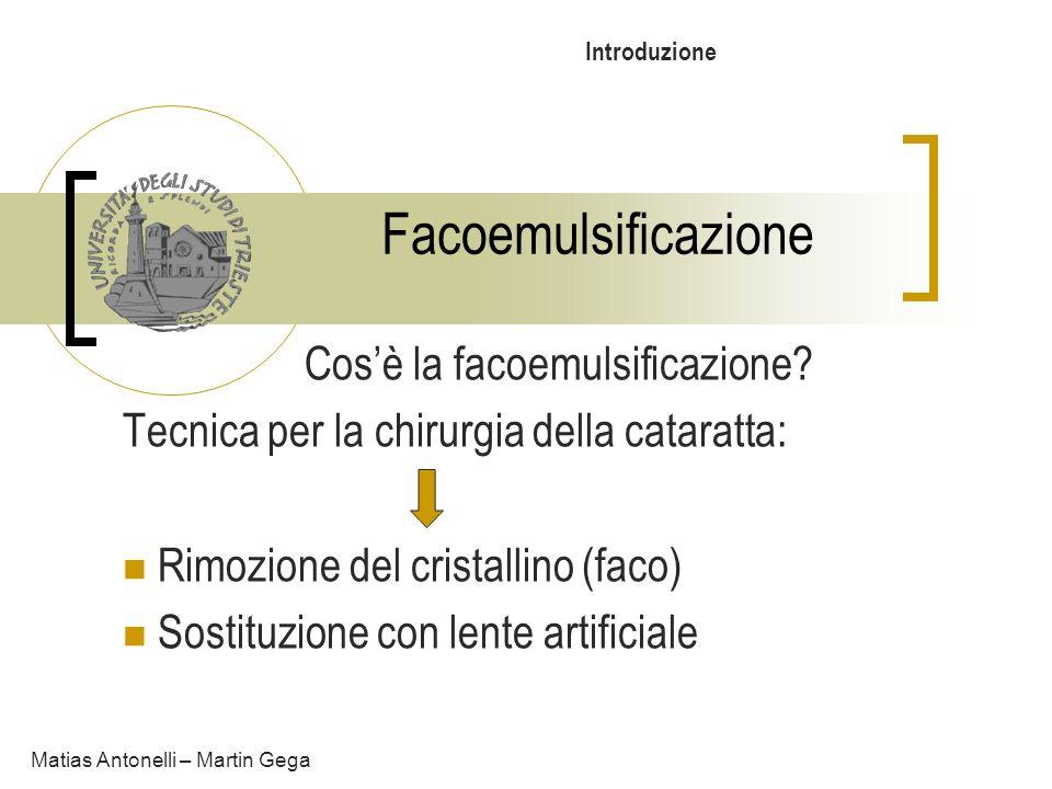 Facoemulsificazione In particolare: Frammentazione con sonda ad ultrasuoni Aspirazione mediante la stessa Matias Antonelli – Martin Gega Incisione di soli 3 mm Bassa invasività Veloce recupero della vista Introduzione