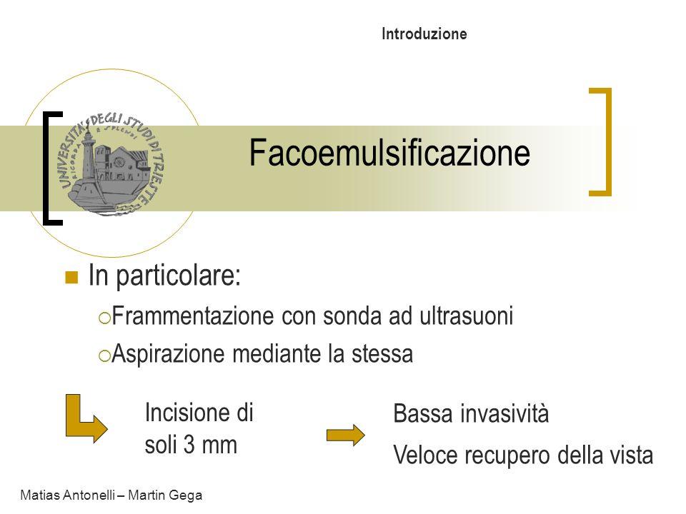 Facoemulsificazione In particolare: Frammentazione con sonda ad ultrasuoni Aspirazione mediante la stessa Matias Antonelli – Martin Gega Incisione di