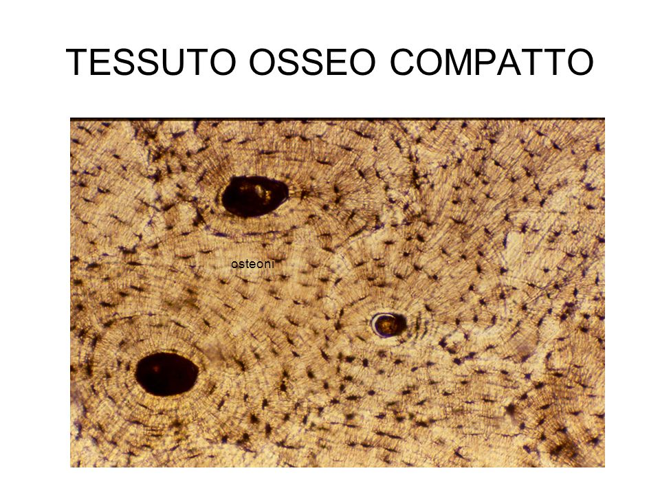 TESSUTO OSSEO COMPATTO osteoni