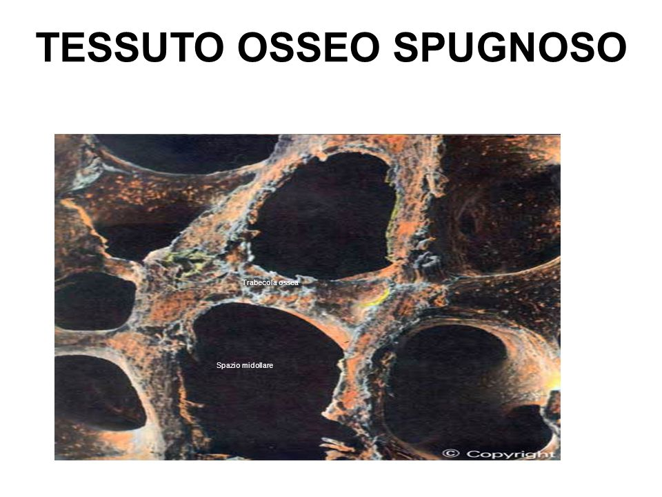 TESSUTO OSSEO SPUGNOSO Trabecola ossea Spazio midollare