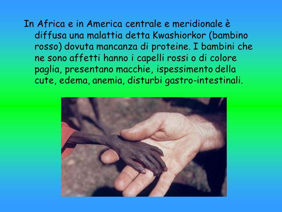 In Africa e in America centrale e meridionale è diffusa una malattia detta Kwashiorkor (bambino rosso) dovuta mancanza di proteine. I bambini che ne s