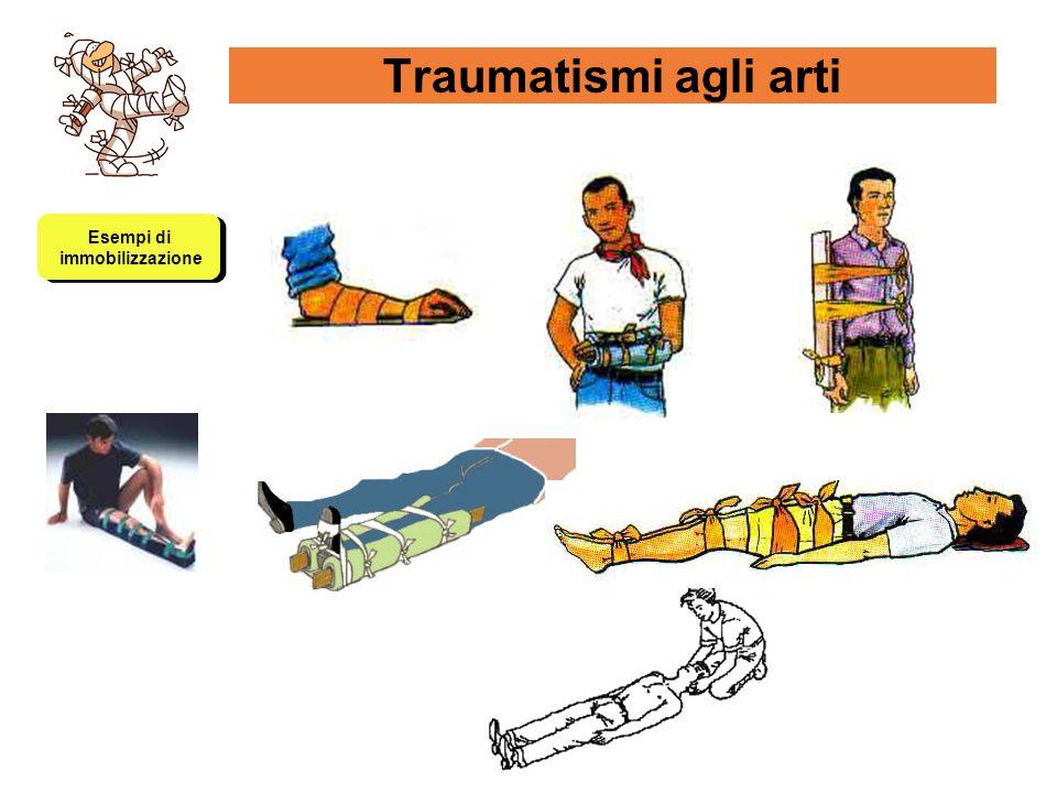 Traumatismi agli arti Esempi di immobilizzazione Esempi di immobilizzazione