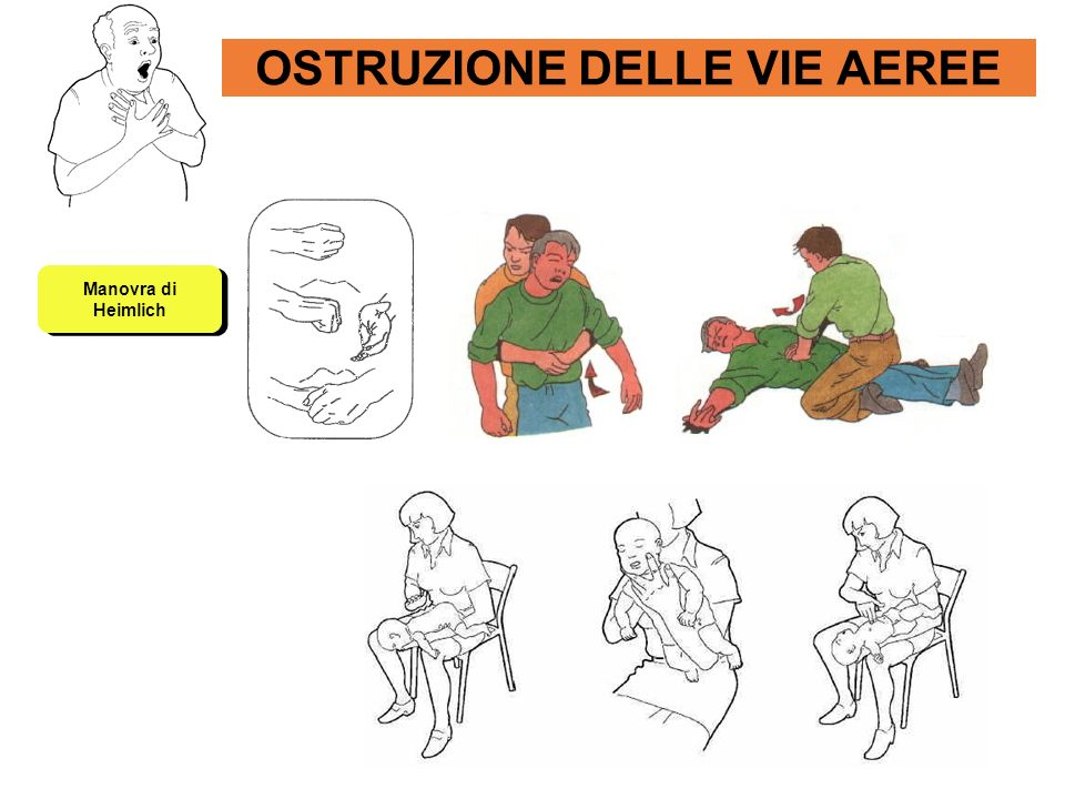 AMPUTAZIONE Moncone con emorragia Arto amputato Protocollo RCR si LABC.