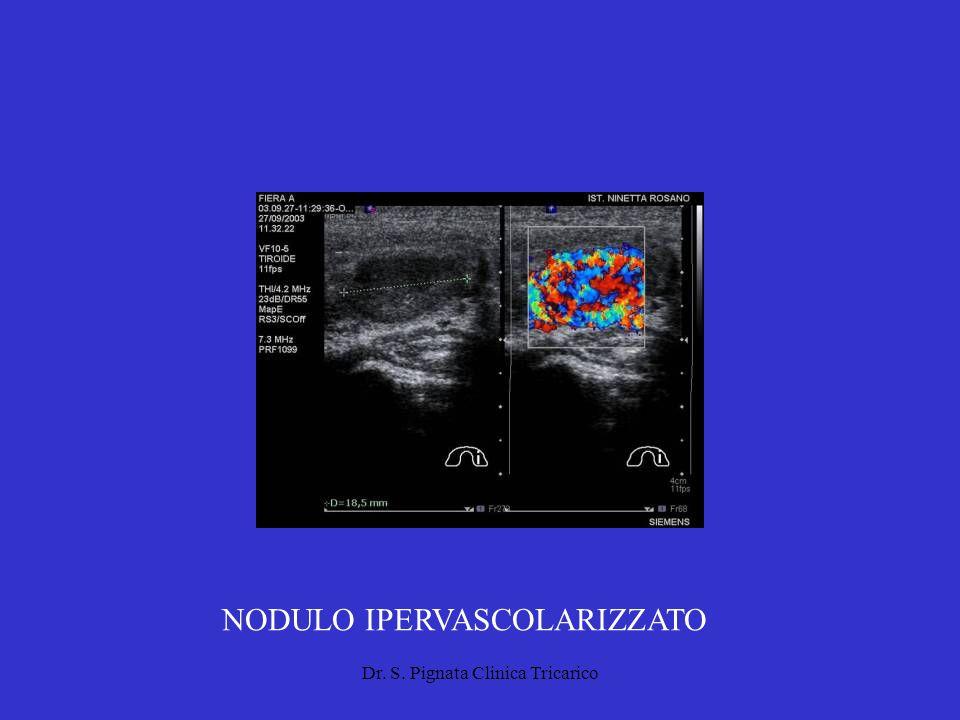 Dr. S. Pignata Clinica Tricarico NODULO IPERVASCOLARIZZATO