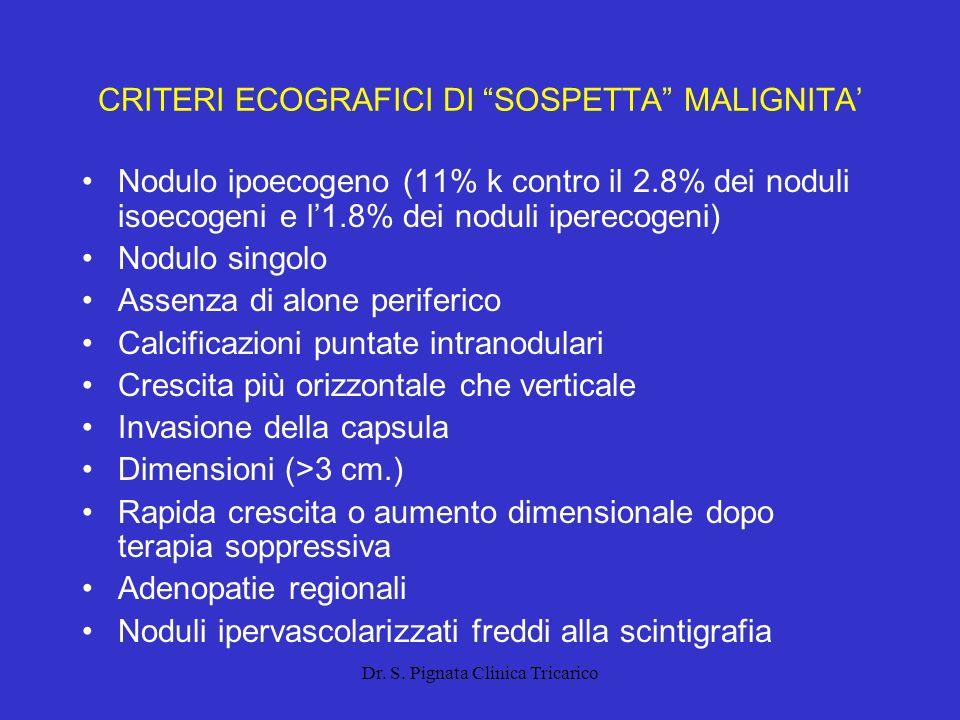 Dr. S. Pignata Clinica Tricarico CRITERI ECOGRAFICI DI SOSPETTA MALIGNITA Nodulo ipoecogeno (11% k contro il 2.8% dei noduli isoecogeni e l1.8% dei no