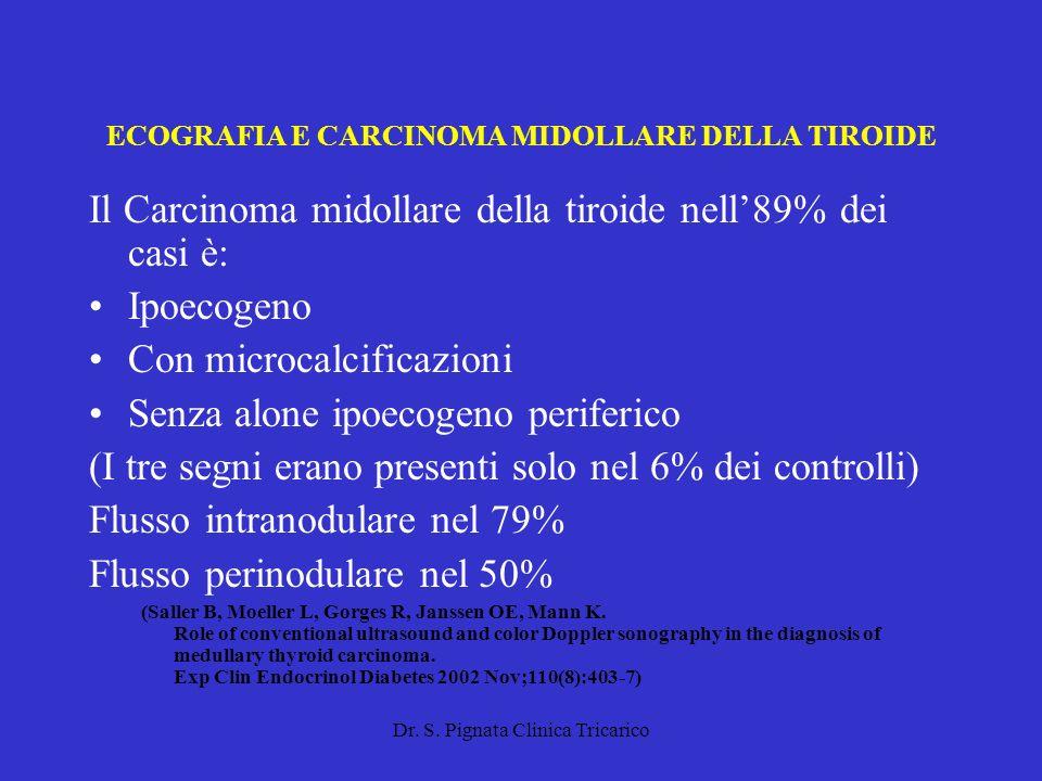 Dr. S. Pignata Clinica Tricarico ECOGRAFIA E CARCINOMA MIDOLLARE DELLA TIROIDE Il Carcinoma midollare della tiroide nell89% dei casi è: Ipoecogeno Con