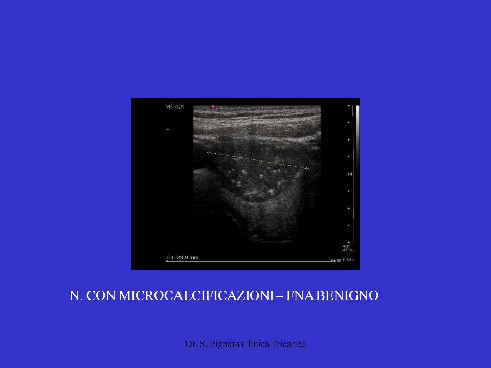 Dr. S. Pignata Clinica Tricarico N. CON MICROCALCIFICAZIONI – FNA BENIGNO