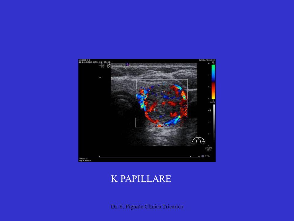 Dr. S. Pignata Clinica Tricarico K PAPILLARE