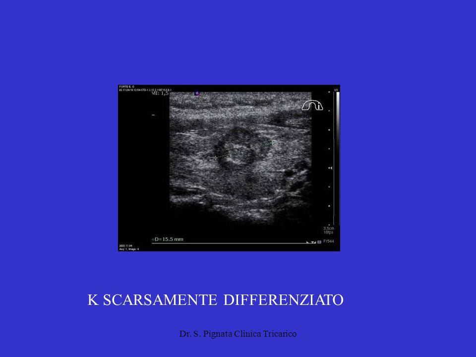 Dr. S. Pignata Clinica Tricarico K SCARSAMENTE DIFFERENZIATO