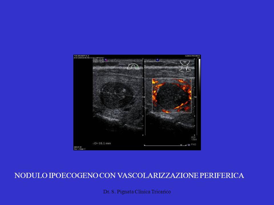 Dr. S. Pignata Clinica Tricarico NODULO IPOECOGENO CON VASCOLARIZZAZIONE PERIFERICA