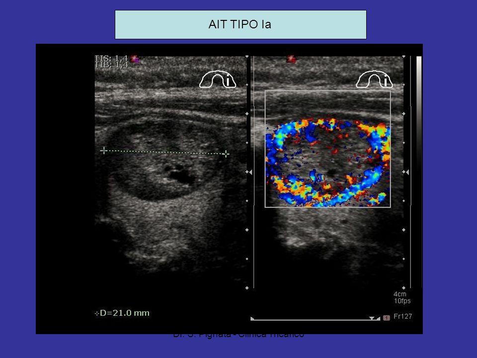 Dr. S. Pignata - Clinica Tricarico AIT TIPO Ia