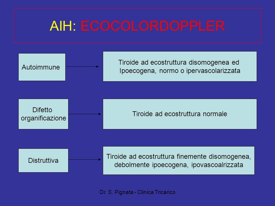 Dr. S. Pignata - Clinica Tricarico AIH: ECOCOLORDOPPLER Autoimmune Difetto organificazione Distruttiva Tiroide ad ecostruttura disomogenea ed Ipoecoge